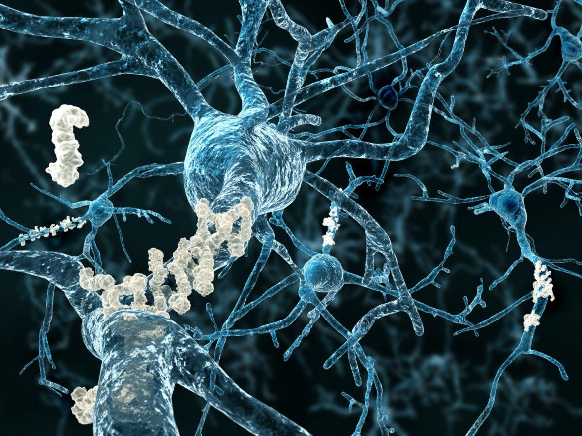 Plaque on brain.jpg